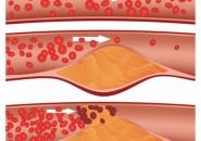 Cosa fare se si ha il colesterolo alto