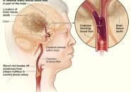 Ictus ischemico, sintomi e prevenzione