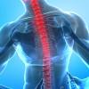 Cos'è la lombosciatalgia?
