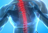 Lombosciatalgia: Sintomi e Terapia