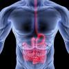 La malattia di Crohn