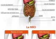 Il Morbo di Crohn dalla parte del paziente