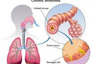 Bronchite, cause e sintomi